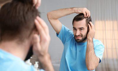 erfelijke vorm van vroegtijdig haarverlies