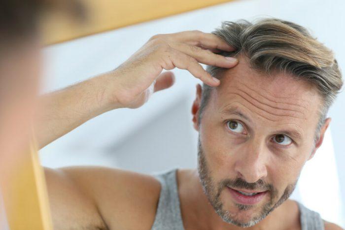 wat te doen tegen kaal worden
